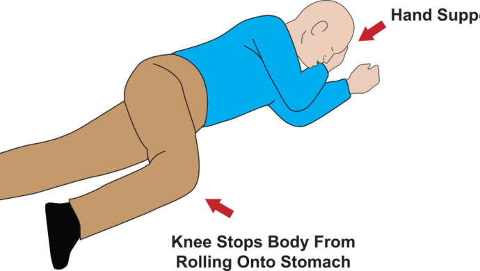 The Recovery Position - How to keep someone's airway open